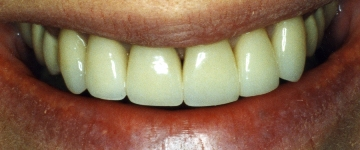 Cosmetic dentistry by a general dentist